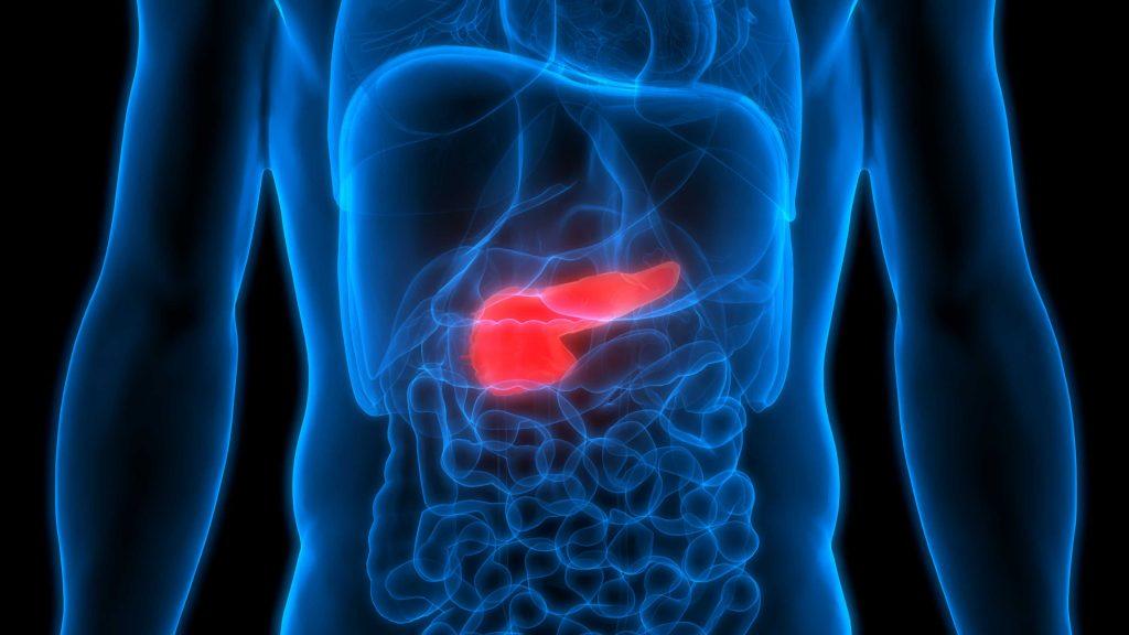 pankreatito simptomai svorio metimas